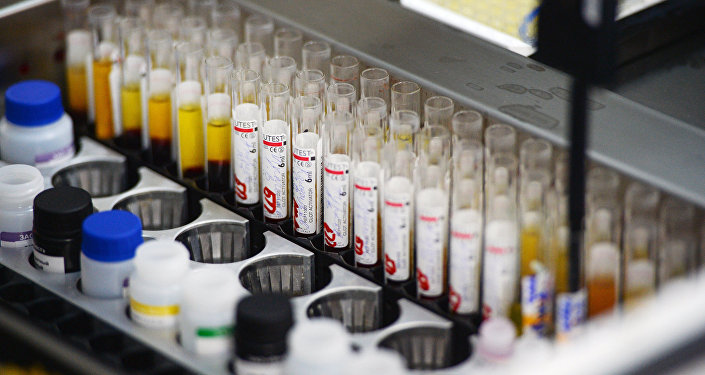 Immunoassay screening lab the blood is tested for infection (hepatitis, syphilis, HIV) o­n automatic equipment at the Novosibirsk blood donation center